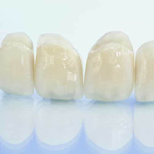 dental crown on isolated background